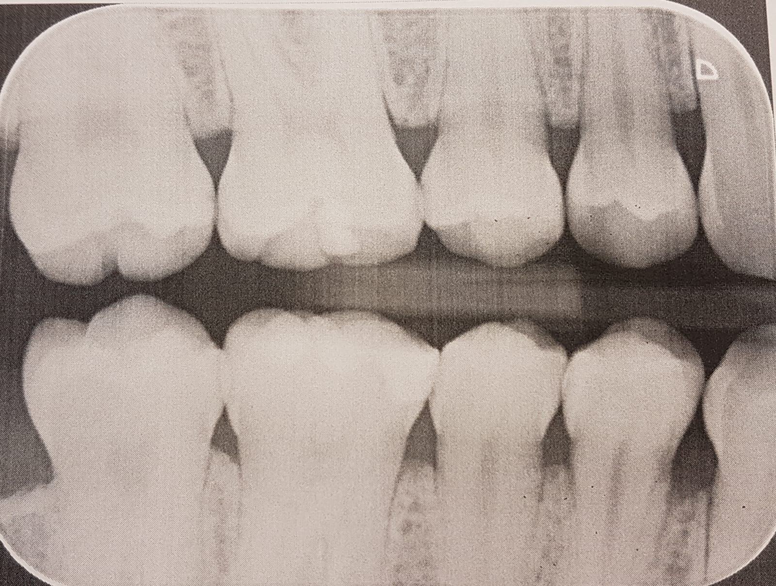 Zahnarztpraxis Sylvia Pahl Digitales Röntgen