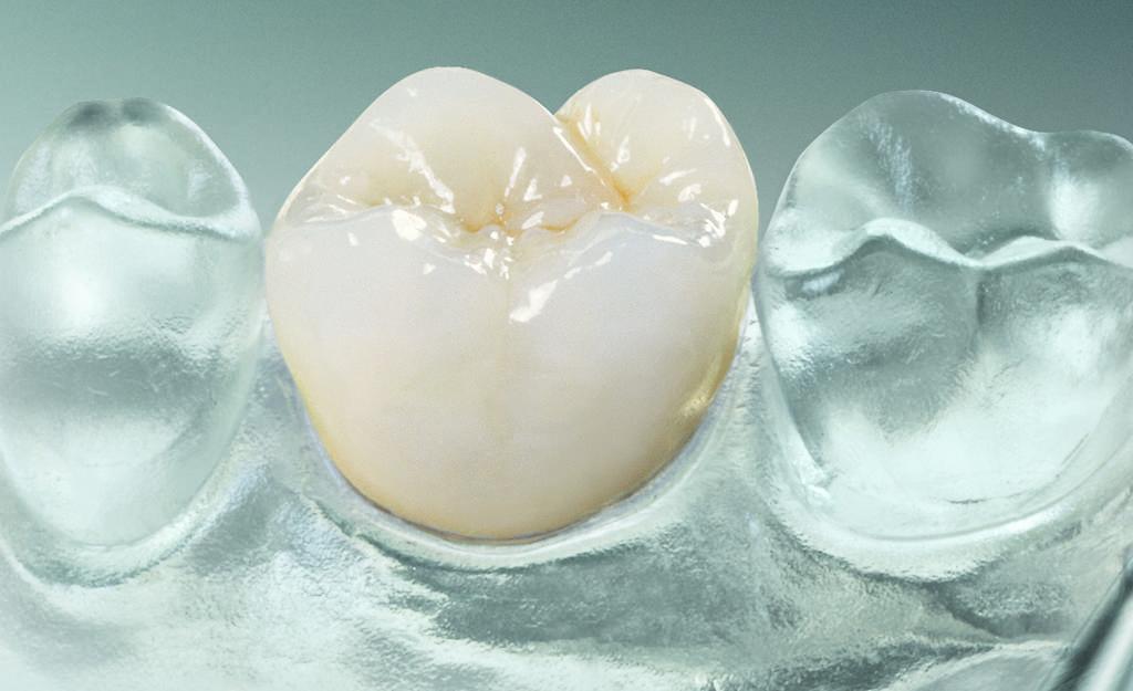 Zahnarztpraxis Sylvia Pahl Zahnersatz
